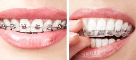smile-direct-club-risk-failure-identify-cases-require-braces