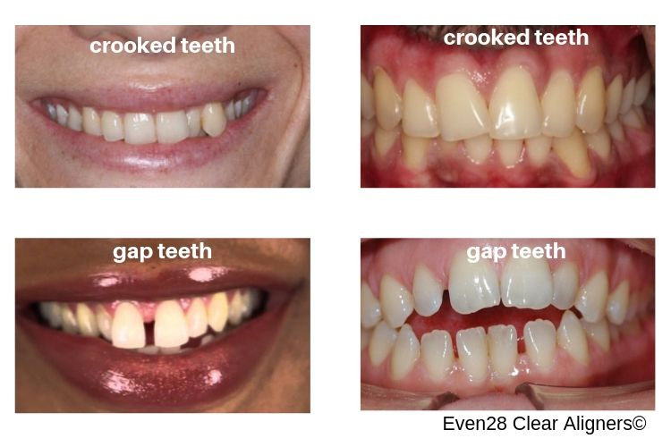 ideal-candidates-even28-at-home-clear-aligners