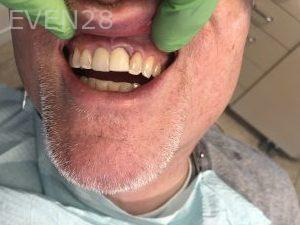 Ali-John-Jazayeri-Dental-Implant-After-1