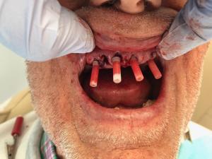 Ali-John-Jazayeri-All-on-Four-Dental-Implant-After-4