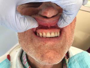Ali-John-Jazayeri-All-on-Four-Dental-Implant-After-4-2