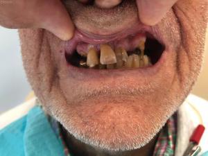 Ali-John-Jazayeri-All-on-Four-Dental-Implant-Before-4