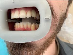 Ali-John-Jazayeri-Dental-Implant-After-7