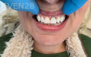 Ali-John-Jazayeri-Dental-Implant-After-20