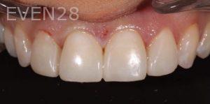 Joseph-Kabaklian-Dental-Bonding--After-4