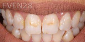 Joseph-Kabaklian-Dental-Bonding-Before-4