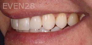 Joseph-Kabaklian-Dental-Crown-After-1