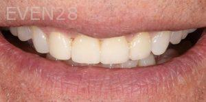 Joseph-Kabaklian-Dental-Crown-After-2