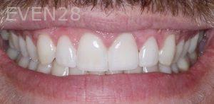 Joseph-Kabaklian-Dental-Crown-After-4