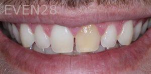 Joseph-Kabaklian-Dental-Crown-Before-4