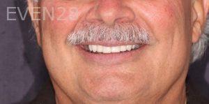 Joseph-Kabaklian-Smile-Makeover-After-3