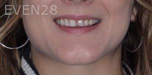 Joseph-Kabaklian-Smile-Makeover-Before-5