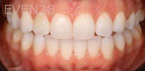 Joseph-Kabaklian-Teeth-Whitening-After-1
