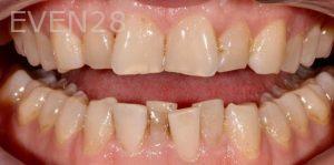 Joseph-Kabaklian-Teeth-Whitening-After-4
