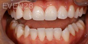 Joseph-Kabaklian-Teeth-Whitening-Before-1