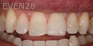 Joseph-Kabaklian-Teeth-Whitening-Before-2