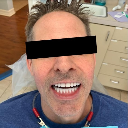 Ali-John-Jazayeri-Dental-Implant-All-on-Four-After-1a