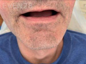 Ali-John-Jazayeri-Dental-Implant-All-on-Four-Before-1a