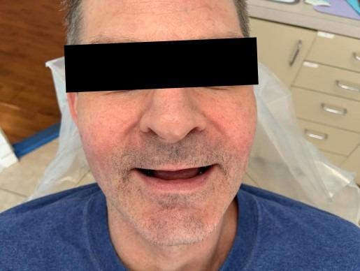 Ali-John-Jazayeri-Dental-Implant-All-on-Four-Before-1d