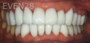 Amir-Larijani-Dental-Crowns-after-1
