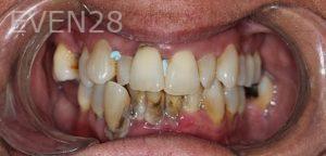 Amir-Larijani-Dentures-before-1