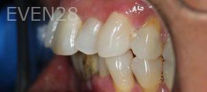 Amir-Larijani-Dentures-before-1b