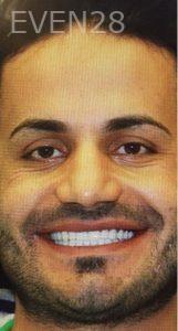 Amir-Larijani-Smile-Makeover-after-5