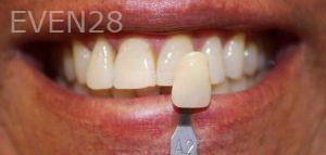 Amir-Larijani-Teeth-Whitening-before-1