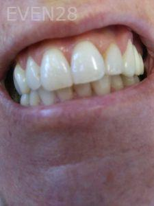 Ali-John-Jazayeri-Teeth-Whitening-before-3