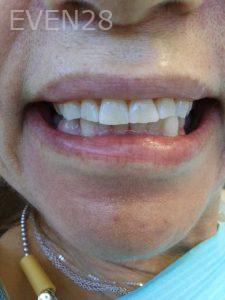 Ali-John-Jazayeri-Teeth-Whitening-after-2