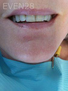 Ali-John-Jazayeri-Teeth-Whitening-12