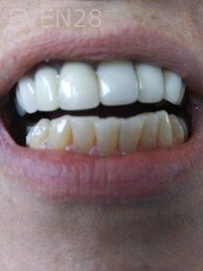 Ali-John-Jazayeri-Teeth-Whitening-before-6