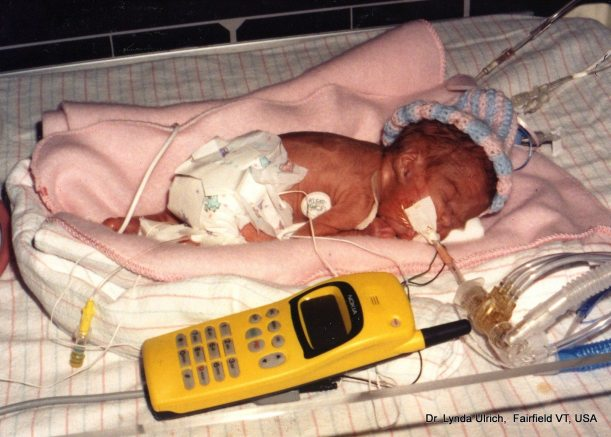 Image: Tiny premature baby the size of a cellphone