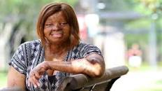 Meet Kechi, the Miracle girl, one of two that survived the Sosoliso crash that claimed 107 lives