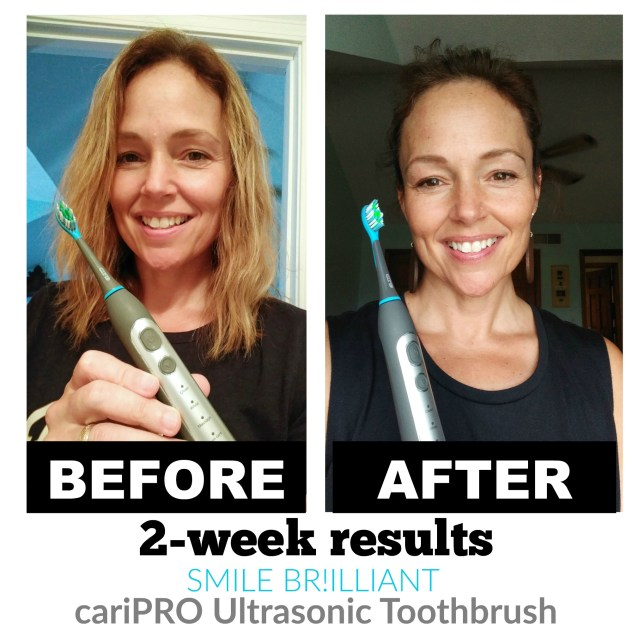 cariPRO Ultrasonic Toothbrush Before and After