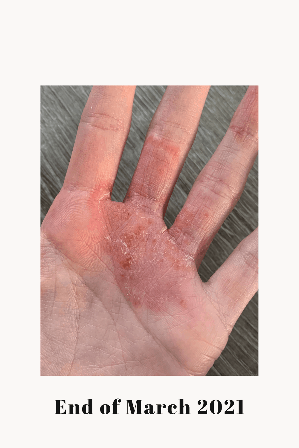 The current state of my eczema.