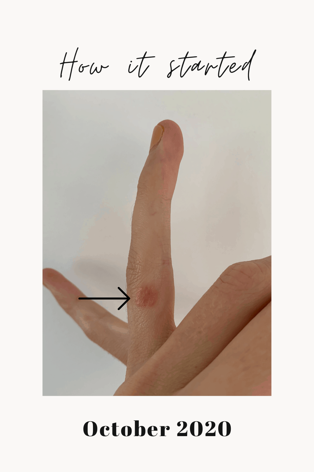 My left ring finger with my first eczema flare.