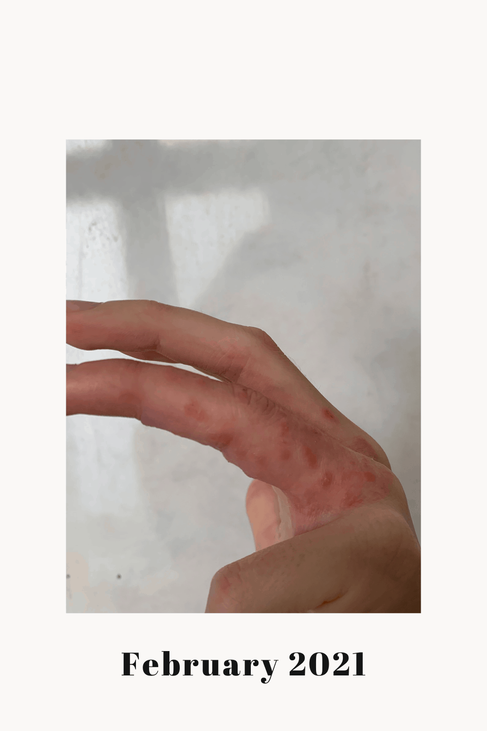 A side view of my left ring finger with a Dyshidrotic Eczema flare.