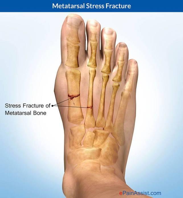 metatarsal-stress-fracture