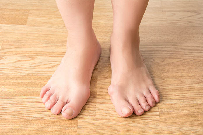 Bunion-Common-Causes