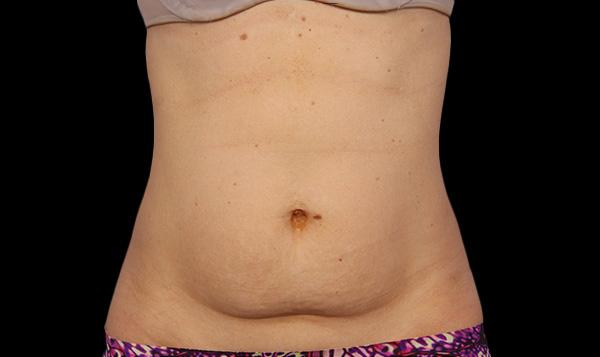 coolsculpting before adbomen permanent fat freezing and body contouring