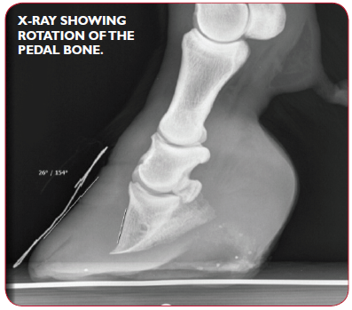 Laminitis in Horses an X-ray showing rotation of the pedal bone