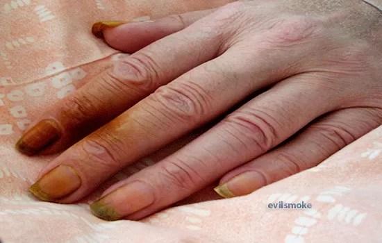foto-zheltiznu-paltsev-ot-nikotina