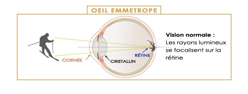 d2ebddbb32378c La presbytie - eVision Centre ophtalmogie à Evian et Divonne les ...