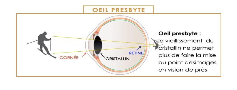 les défauts de la vision et la correction laser oeil PRESBYTE PRESBYTIE