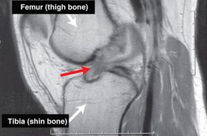 ACL tear on MRI scan