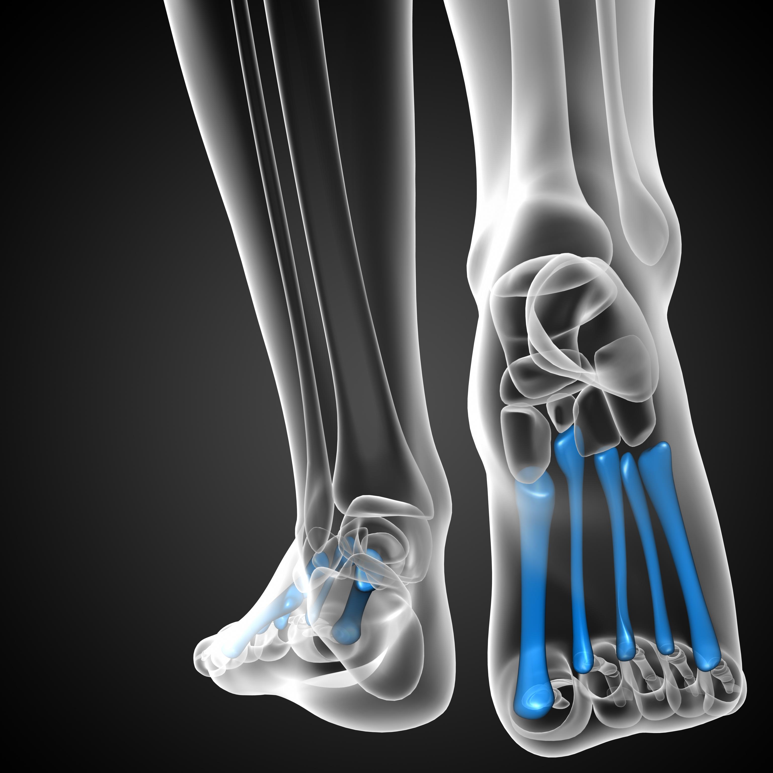 Sesamoiditis (Pain under the Big toe joint)