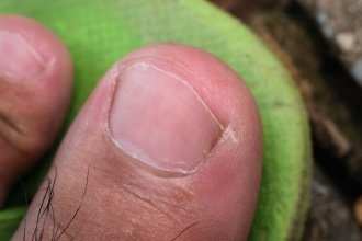 low grade ingrowing toenail