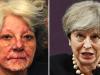 CeaJay Clem Theresa May Chronic Discoid Lupus
