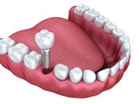 Dental Implants Austell Georgia dentist office